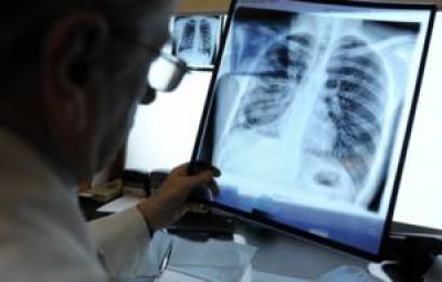 В Тамбовской области снижается заболеваемость туберкулезом